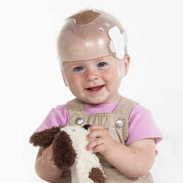 child in helmet being treated for craniosynostosis
